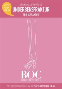 underbensfraktur spiralfraktur BOC gips bryta benet barnfraktur barnortopedi barnortopediskt centrum