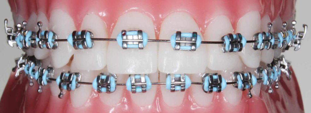 standard metal braces