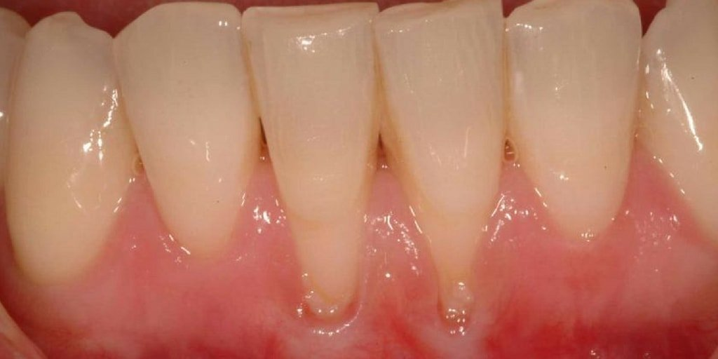 treat gum recession early