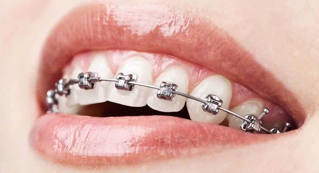 popular metal braces