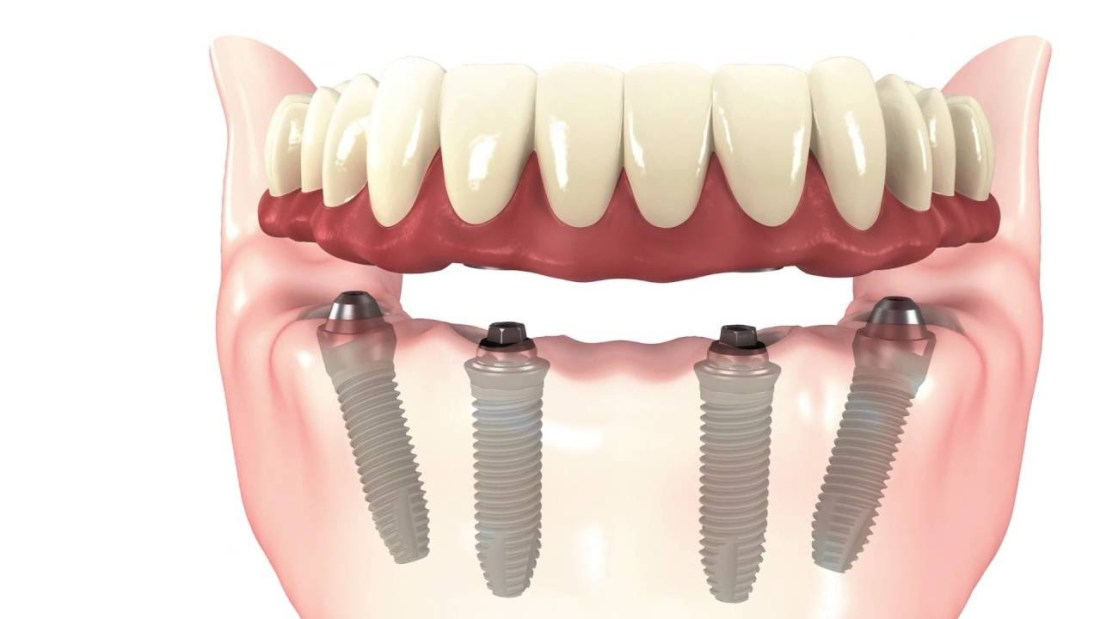 advantages of all-on-4 implants