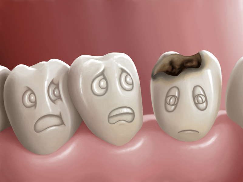 supplements for teeth remineralization