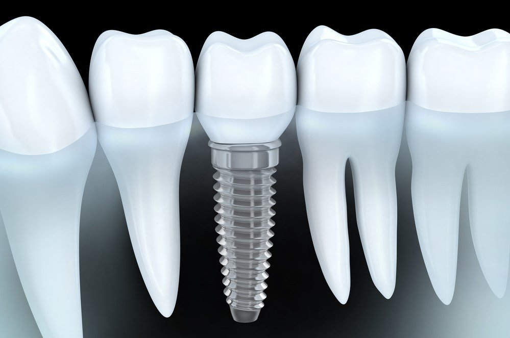 dental implants pros and cons
