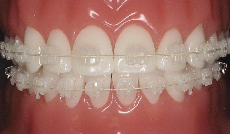 pros and cons of ceramic braces