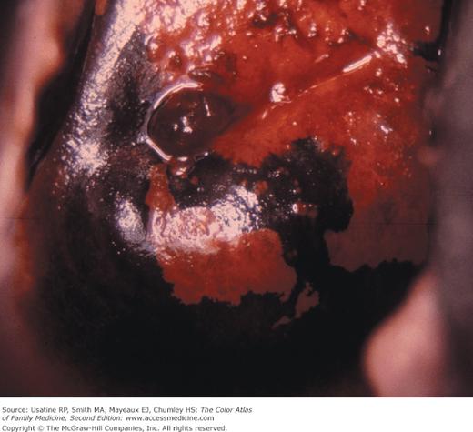 Colposcopy Of Low Grade Lesions Basicmedical Key