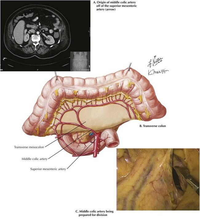 Transverse Colectomy | Basicmedical Key