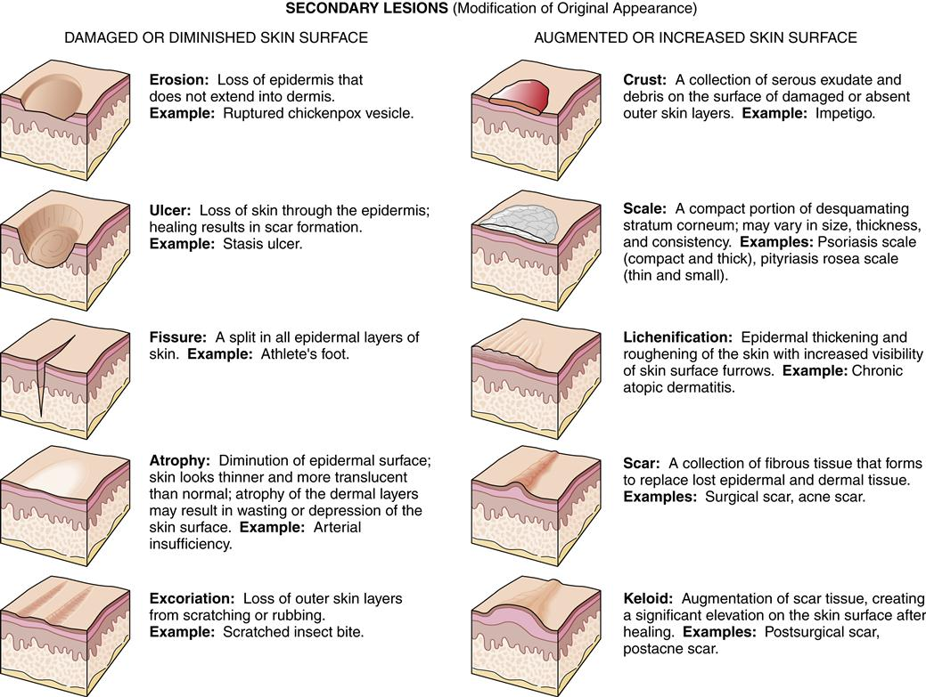 Alterations In The Integumentary System