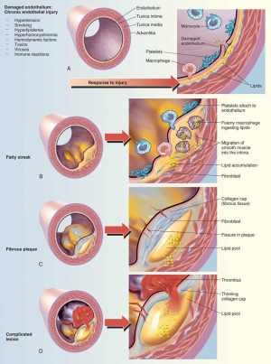 Vascular flow diagram  wiring online
