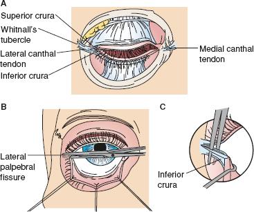 Maxillofacial Injuries | Basicmedical Key