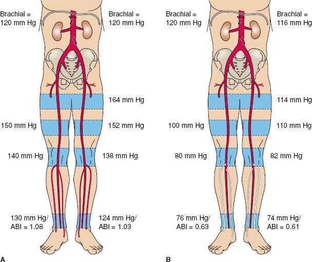 Aortobifemoral Bypass Anatomy Gallery Human Body Anatomy
