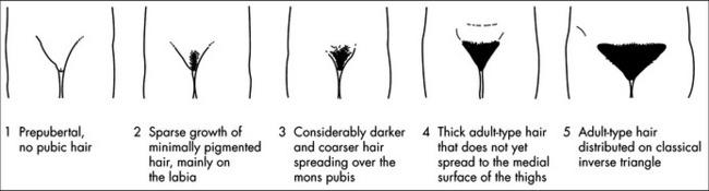 girls pubic hair development adolescent health and development basicmedical key