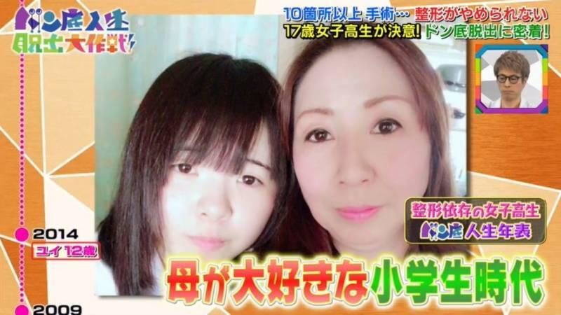 17歲少女「被媽說不好看」狂修臉 2年後媽媽崩潰:她誤會了