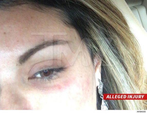 Liziane Gutierrez diz que Chris Brown deu um soco em seu olho. Foto: TMZ