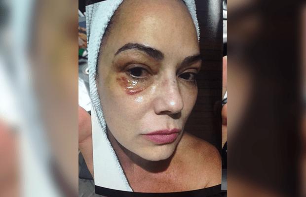 """Luiza Brunet fala sobre agressão doméstica: """"Jamais esquecerei"""""""