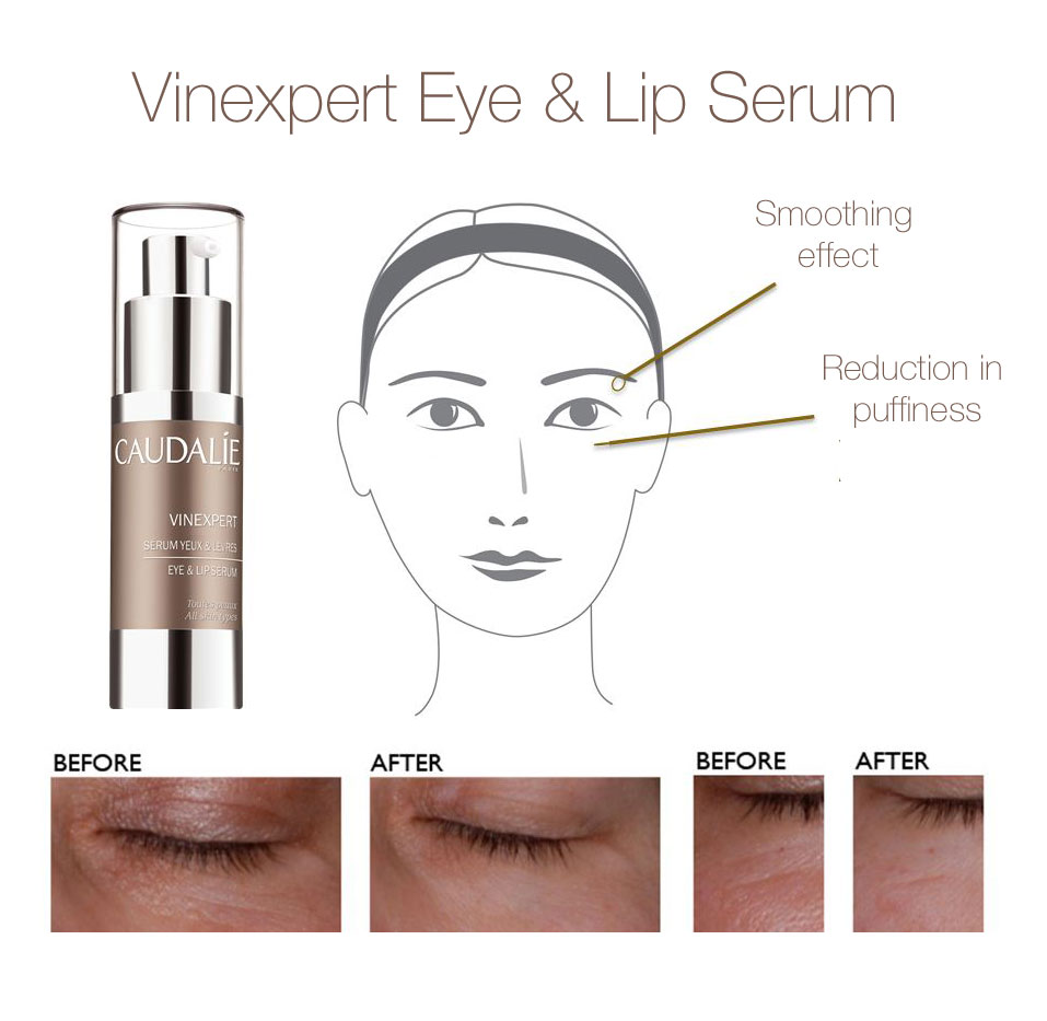 Vinexpert Eye & Lip Serum benefits