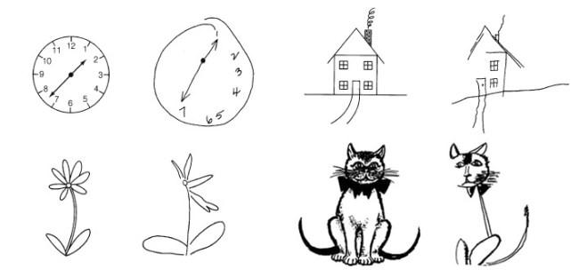 hemispatial-neglect-drawings