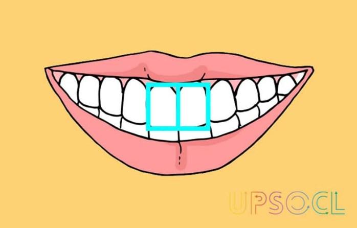 O formato dos dentes da frente revela muito sobre a sua personalidade!