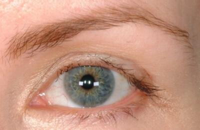 Eyelash Transplant Tennessee Eyelash Hair Loss Care