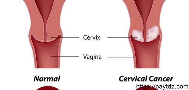 أعراض سرطان الرحم