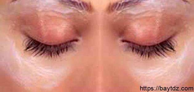 حل للهالات السوداء حول العين
