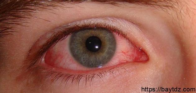 كيفية علاج احمرار العين