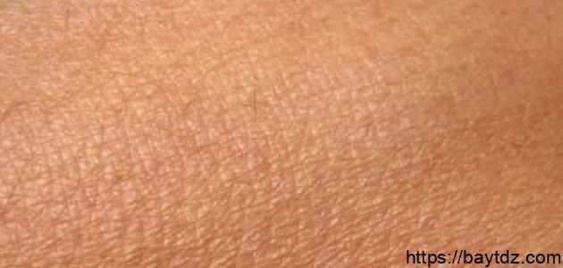ما سبب جفاف الجلد