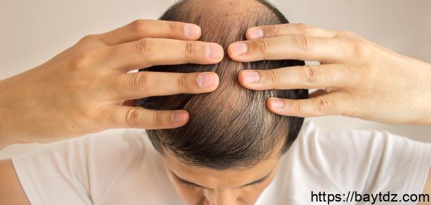 ما علاج تساقط الشعر عند الرجال