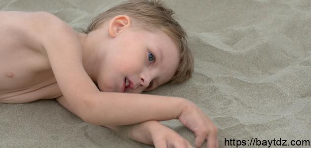 ما هو مرض التوحد لدى الأطفال