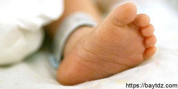 علاج التواء القدم عند المواليد