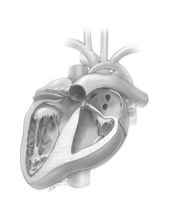 Mitral stenosis/aortic stenosis