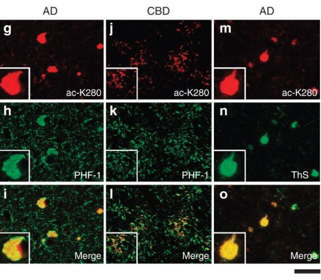 Clumpy Tau: The Role of Acetylation in Brain tau Regulation and Pathologies