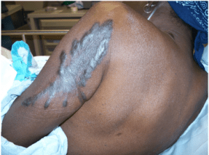 Figure 3. Hyperpigmentation on the arm of a patient with VP.