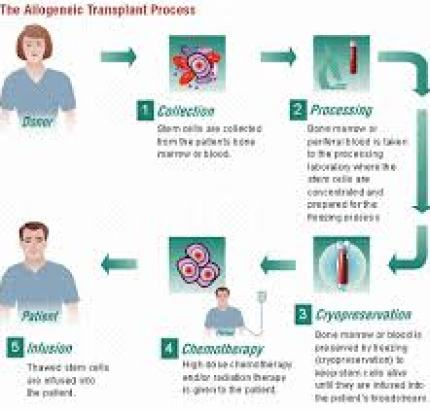 Figure 1. This is a diagram outlining the process of hematopoietic stem cell transplant. Allogenic transplant means that the stem cells are coming from a donor versus the patient. Image Source