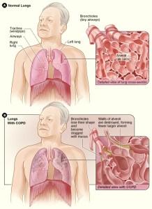 BCM441 - COPD figure 2