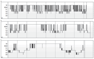 Figure 3. (a) Five months after onset of FFI. (b) After the second night of agomelatine treatment. (c) after three months of agomelatine treatment. Note increased sleep efficiency. (Fröbose et. al. 2012)