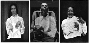 Above are photos of three of Dr. Kinnier Wilson's original patient case studies for Wilson's Disease. The images depict some of the classic symptoms of untreated Wilson's Disease with copper accumulation in the brain causing neurological damage such as muscle tremors and rigors, slack jaw, and vacant stares. (Wilson 1912)