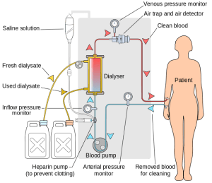 Diagram explaining the process of dialysis. Source: Google Images