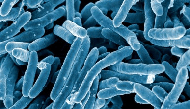 Mycobacterium tuberculosis. Source: http://ktla.com/2015/12/13/350-infants-possibly-exposed-to-tuberculosis-by-employee-at-san-jose-hospital/