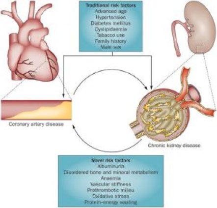 https://www.google.com/search?q=oxidative+stress+coronary+artery+disease&source=lnms&tbm=isch&sa=X&ved=0ahUKEwj4w4zws73aAhXkp1kKHQy5D-sQ_AUICigB&biw=844&bih=774#imgrc=aq7yJ_PhCglgYM: