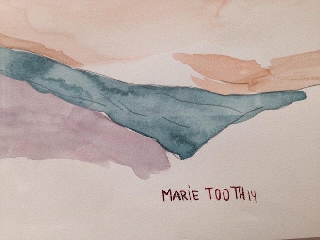 marie tooth dibujos fragile