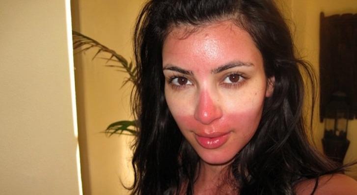 sunburn advice