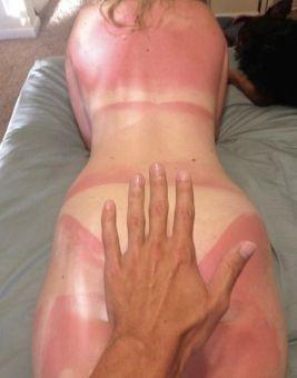 sunburn prevention tips
