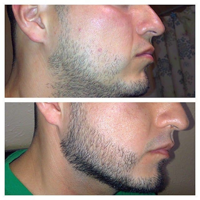 Minoxidil Rogaine For Beard Growth For Fuller And