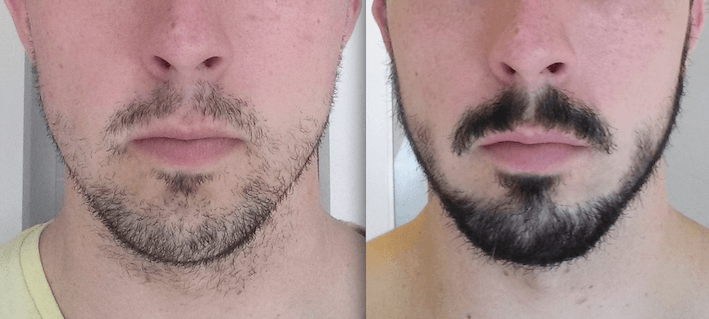 3 months after taking rogain for beard growth