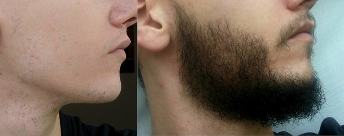 Right side - rogaine beard before and after