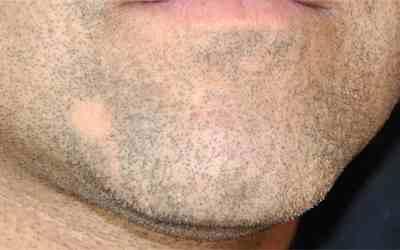 bald spot in beard