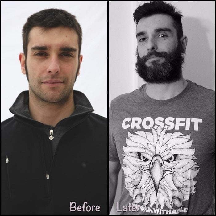 thick beard before and after