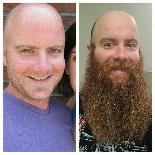 long beard before and after look