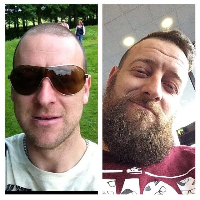 before and after look of scruffy beard