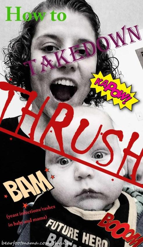 Thrush Takedown @ bearfootmama.com Yeast Infections, Diaper rash, Nipple soreness, Breast Pain, Breastfeeding